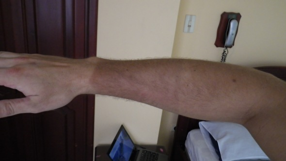 Tan gradient from the riding gloves and occasional rolled up sleeves riding